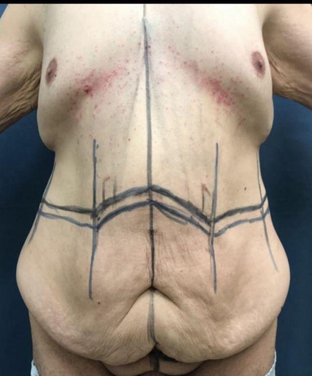 опирация за премахване на кожа