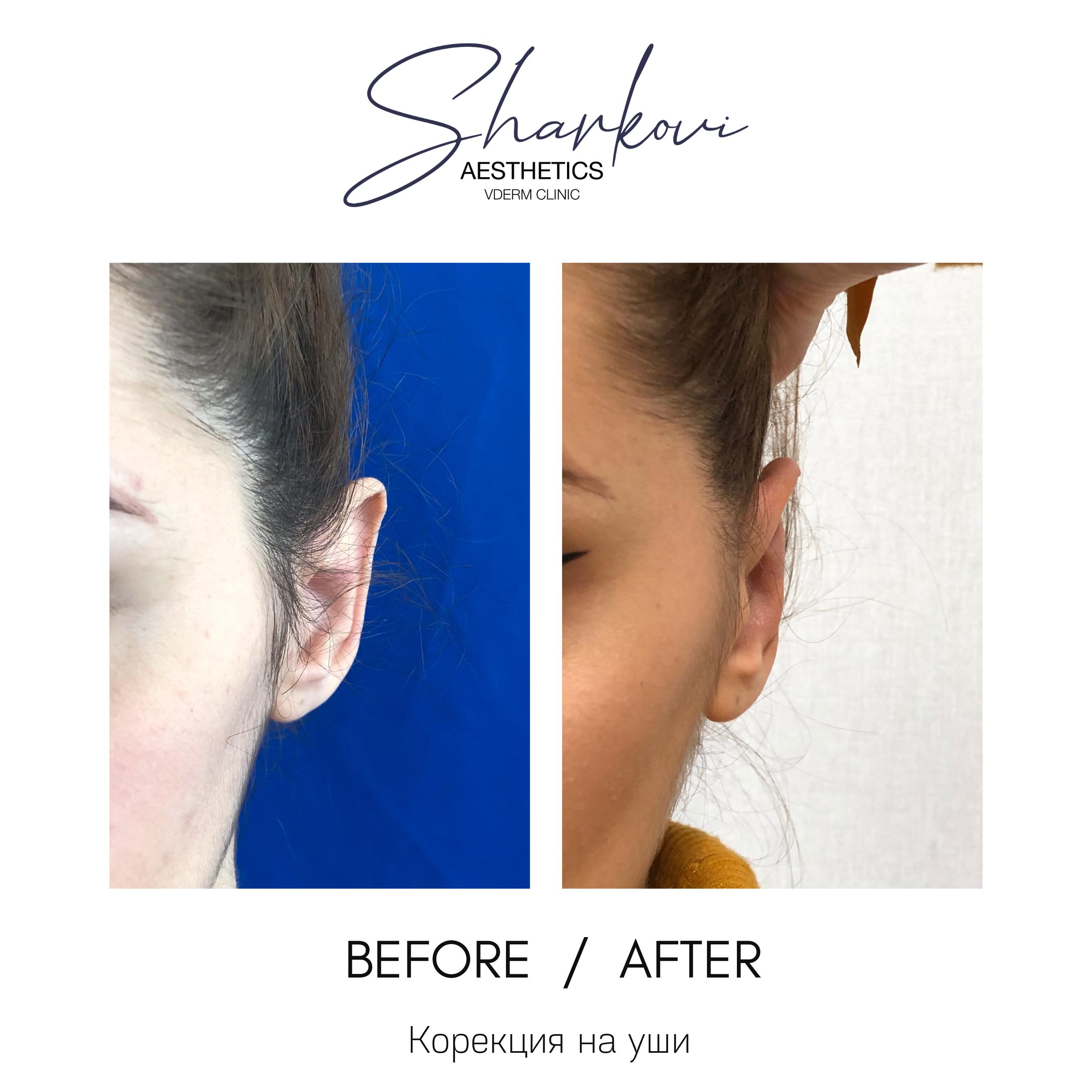 корекция на уши резултати преди и след