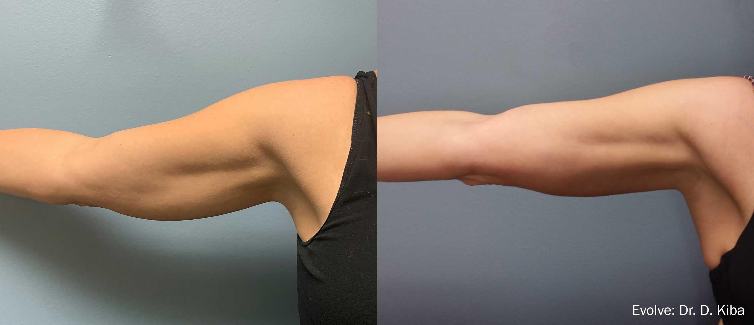 ръце с evolve резултати