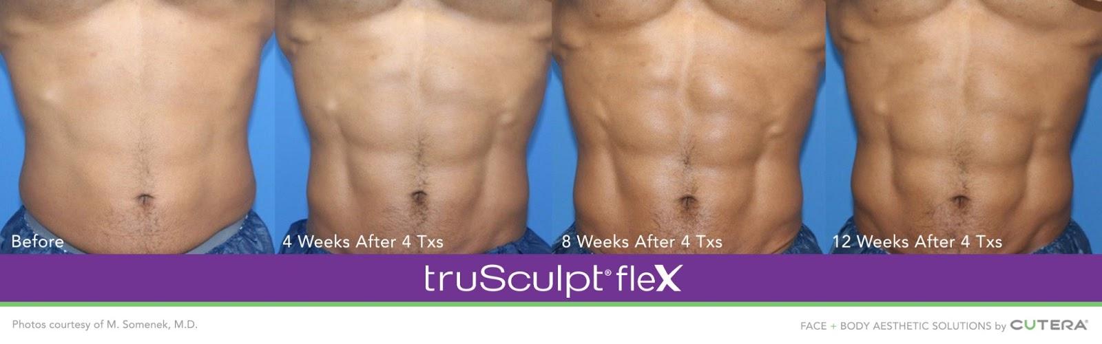 truSculpt Flex корем преди и след 2